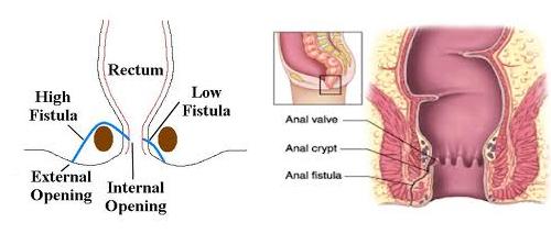 Lateral internal anal sphincterotomy, sexiest milf pornstar pussy